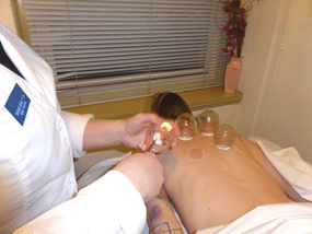 Picture of a student applying cupping techniques to a patient in the student acupuncture clinic.