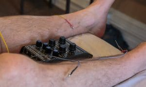 Picture of a patient's legs while they receive electrical stimulation.